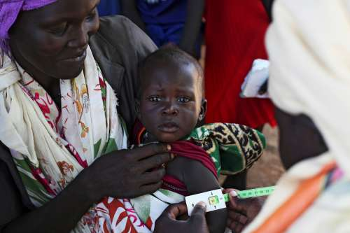 A child having his arm measured to see if he needs to start a supplementary feeding programme immediately.